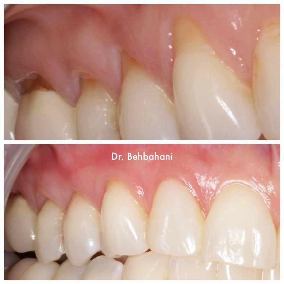 Pinhole Gum Rejuvenation Phoenix
