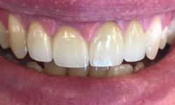 Pinhole Gum Rejuvenation 85014