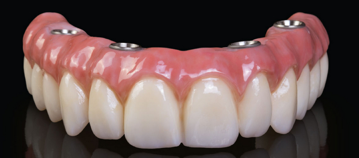 all on four denture phoenix