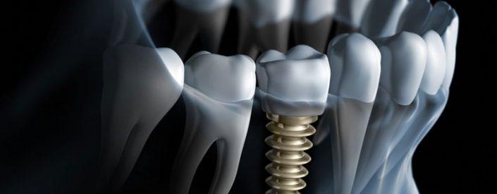 Same Day-Dental-Implants-85014