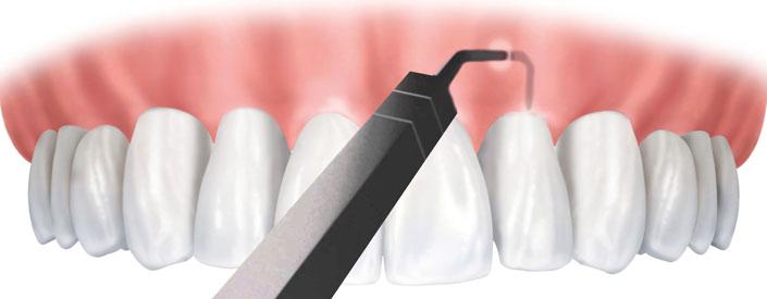 pinhole gum treatment
