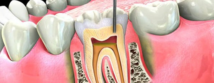 root-canal-phoenix-85014-features
