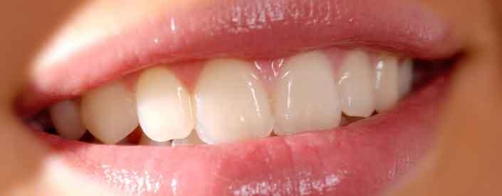 Dental Bonding Phoenix