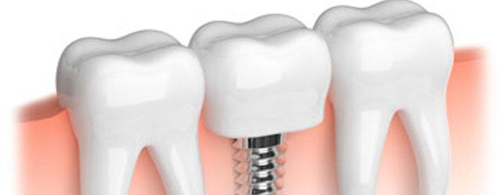 dental-implants-phoenix-az