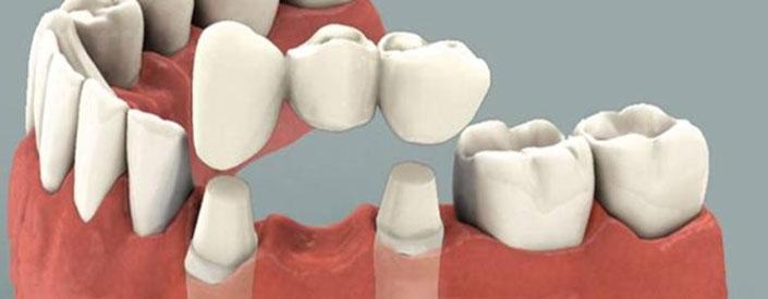 dental-bridge-clean-phoenix