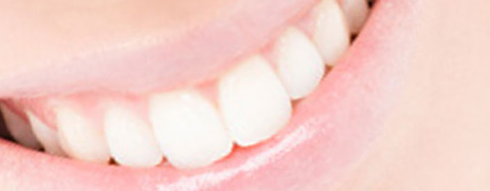 phoenix-teeth-whitening