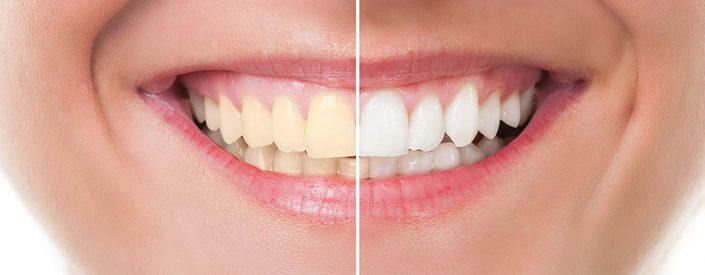 teeth-whitening-phoenix