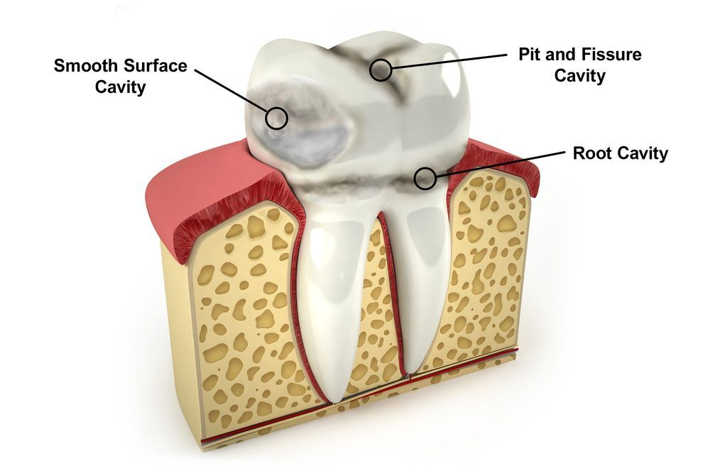 How Dental Cavities Are ClassifiedHow Dental Cavities Are Classified