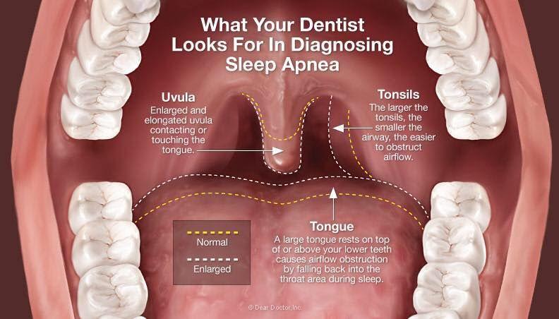 snoring-infographic
