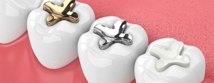dental-fillings-phoenix-featured
