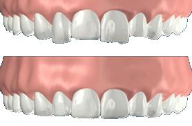 dental-contouring-phoenix