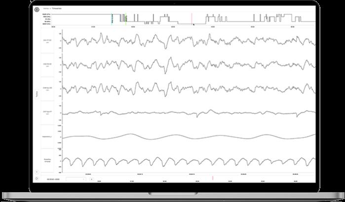 EEG Comp pic
