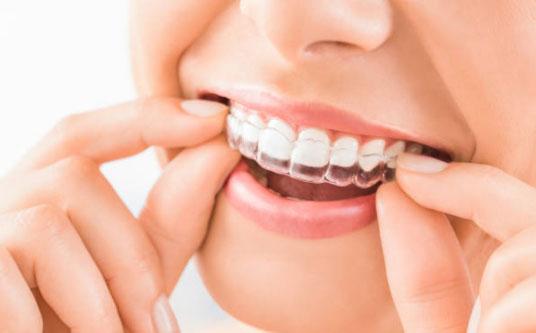 Orthodontic Treatment Phases