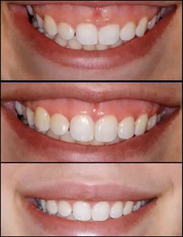 Eliminate Your Gummy Smile With Crown Lengthening