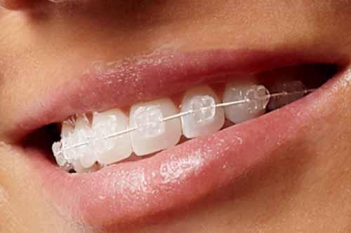 Clear Braces - Dr Ronald Chaiklin