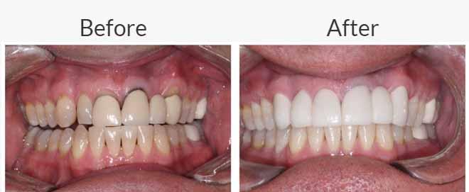 Dental Crowns - Dr Ronald Chaiklin