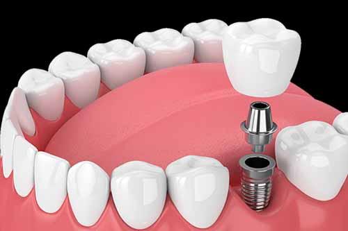 Dental Implants - Dr Ronald Chaiklin