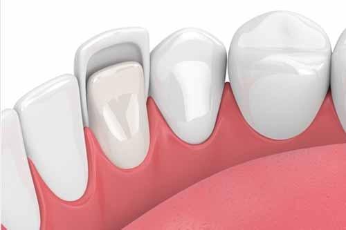Dental Veneers - Dr Ronald Chaiklin