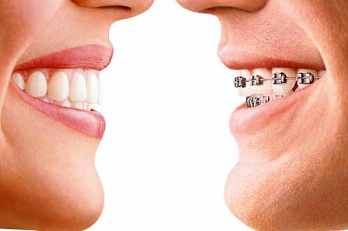 Orthodontic Treatment by Dr Ronald Chaiklin.