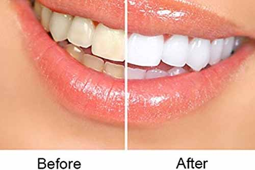 Tooth Whitening - Dr Ronald Chaiklin