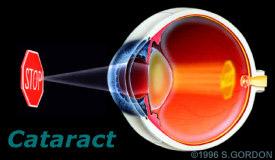 catract1