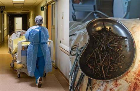 Doctors Found Nails and Screws in Man Stomach