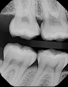 Digital X-ray showing teeth with resorption and cavities from dentists in Orange and Woodbridge, CT