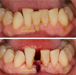 Photo and Picture of Tooth extraction for Invisalign in Orange, CT also seing Woodbridge, West Haven, Milford
