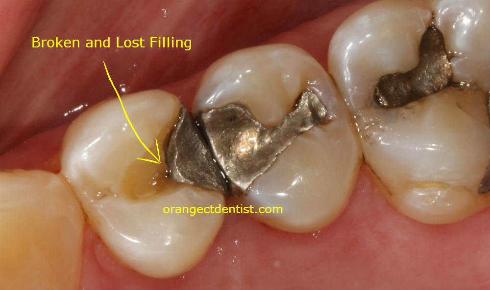 Photo of a lost and broken filling observed that needs a new filling