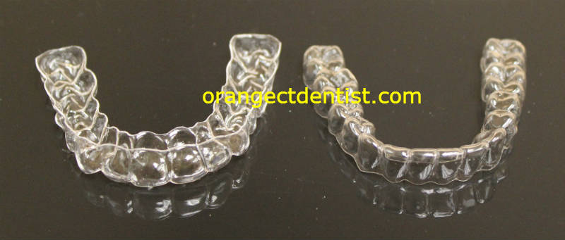 Home Bleaching trays used to whiten teeth at home with peroxide