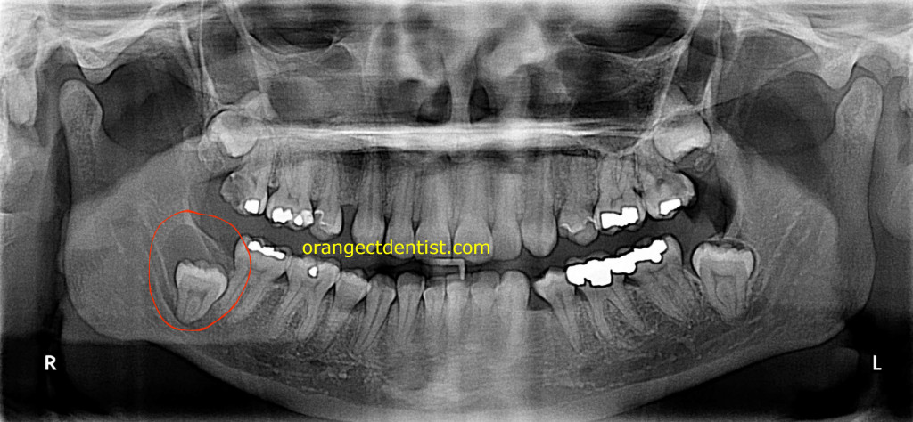 Panoramic x-ray of dentigerous or follicular cyst with an impacted wisdom tooth or third molar