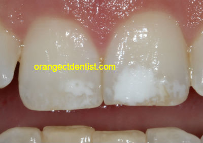 Photo of white spots on teeth that we treat conservatively in our Orange and West Haven CT dentist office