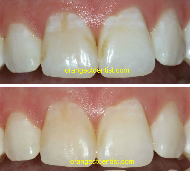 Before and after photos of MI paste to treat white spots on teeth after braces by dentist in Orange and Woodbridge, CT