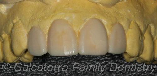 Wax-up of veneers to preview new teeth