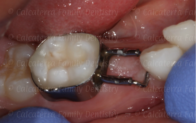 dental space maintainer to keep room for teeth