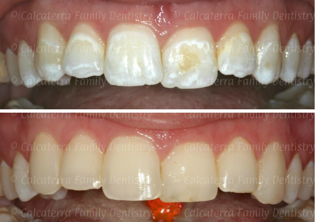Before and after photos of white spots on teeth after braces fixed with dental bonding.