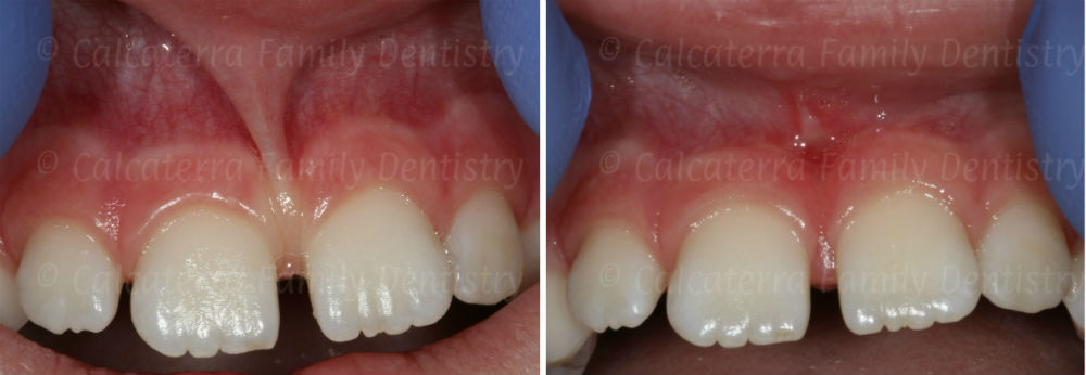 laser frenulectomy on a 7 year old before and after photograph