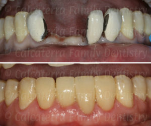 Before and after photo showing old bridge removed to his new smile