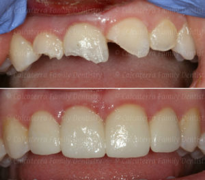 Before and after photo of front teeth after trauma