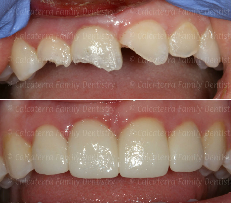 Before and after photos after trauma of front teeth