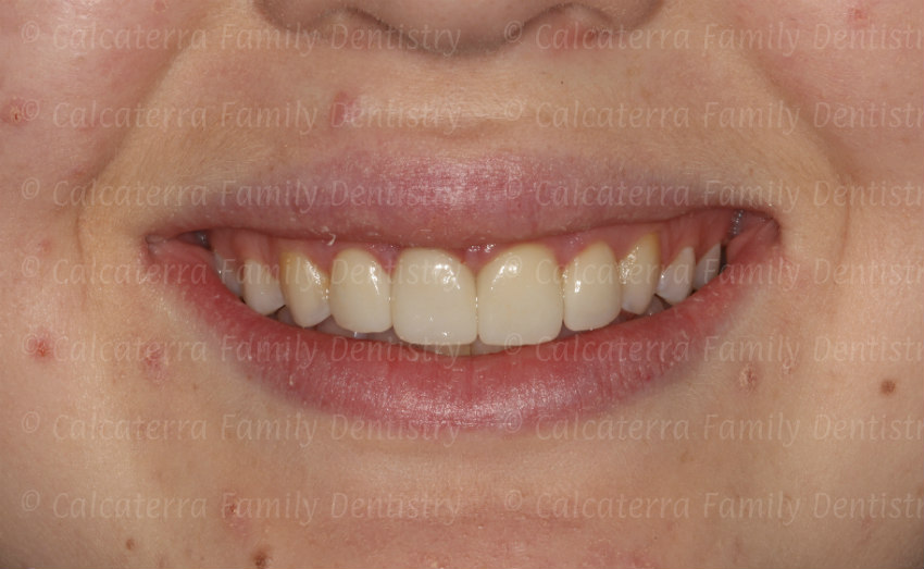 Smile after trauma with crowns and veneers