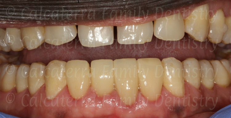 four crowns on lower incisors with an implant