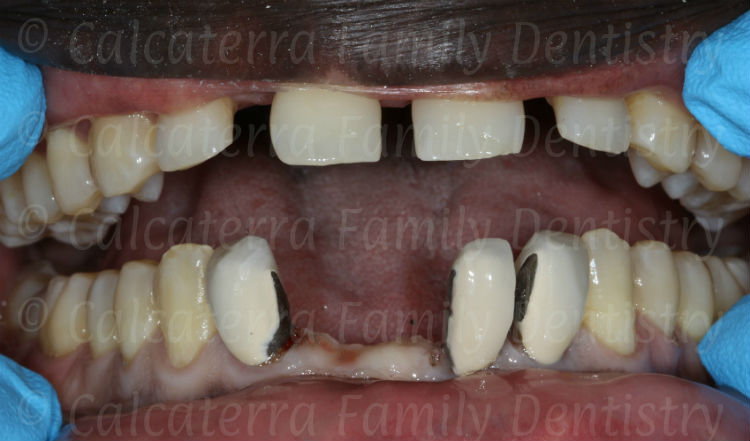 photo of lower bridge sectioned showing ugly incisor crowns