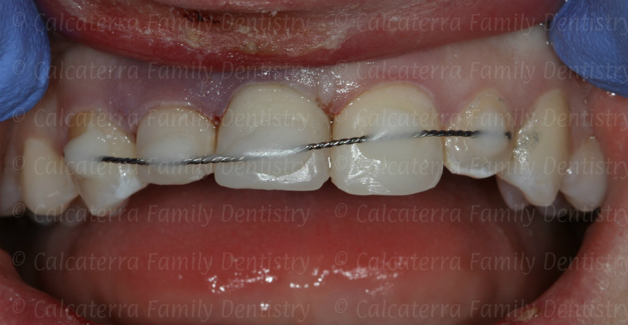 Front teeth splinted with ortho wire due to trauma
