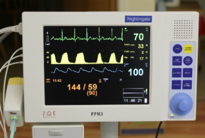 patient safety monitor for being put to sleep at the dentist