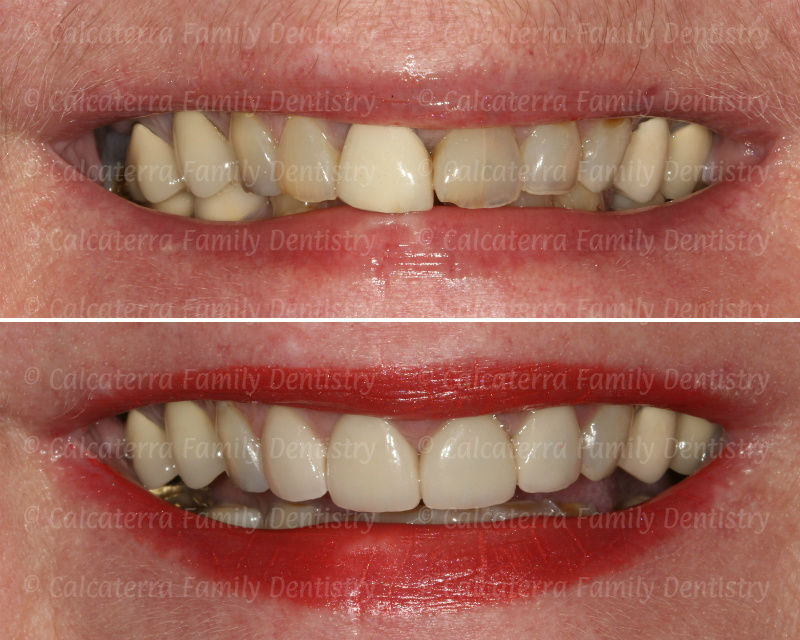 Before and after veneers and crowns photo