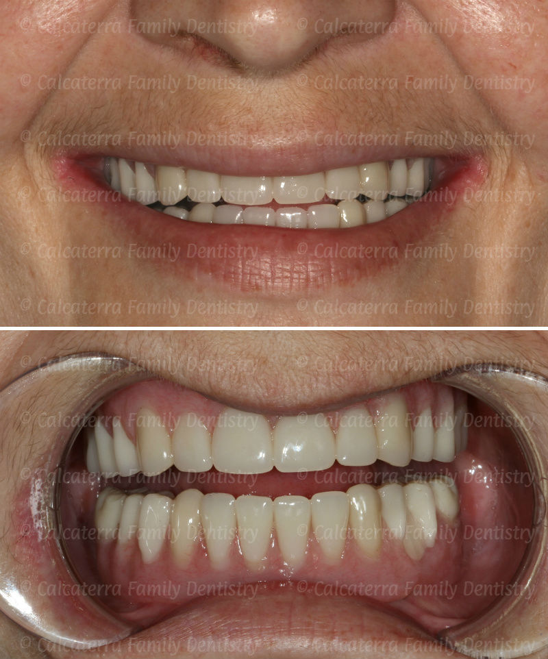 Smiling photo showing fixed implant complete dentures