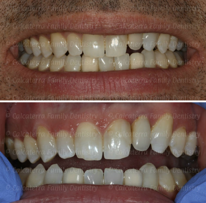 Pre-operative photos of our patient Mark from Orange