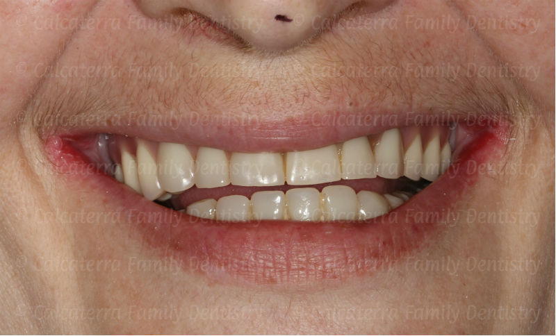 Smile of a patient with a poorly shaped implant retained fixed upper denture.