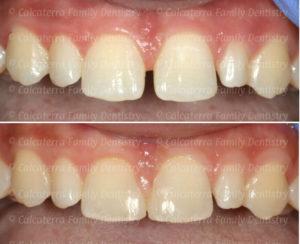 closing a diastema before and after photos.